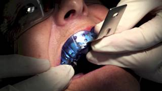 Dentist Training - Single Implant Impression(This training video is aimed at referring dentists that are either interested in restoring crowns on an implant or are already doing so and want to refresh their skills ..., 2013-11-05T10:53:17.000Z)