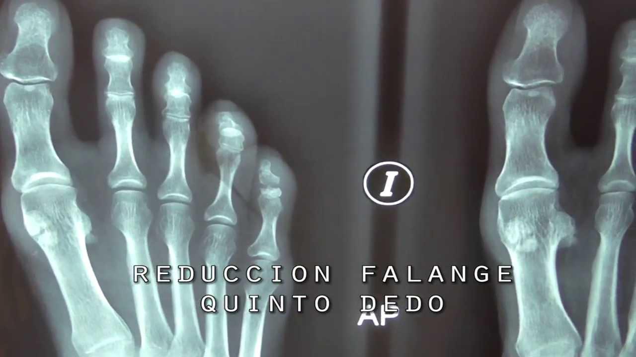 Reducción Abierta Fractura Falangue Quinto Dedo - YouTube