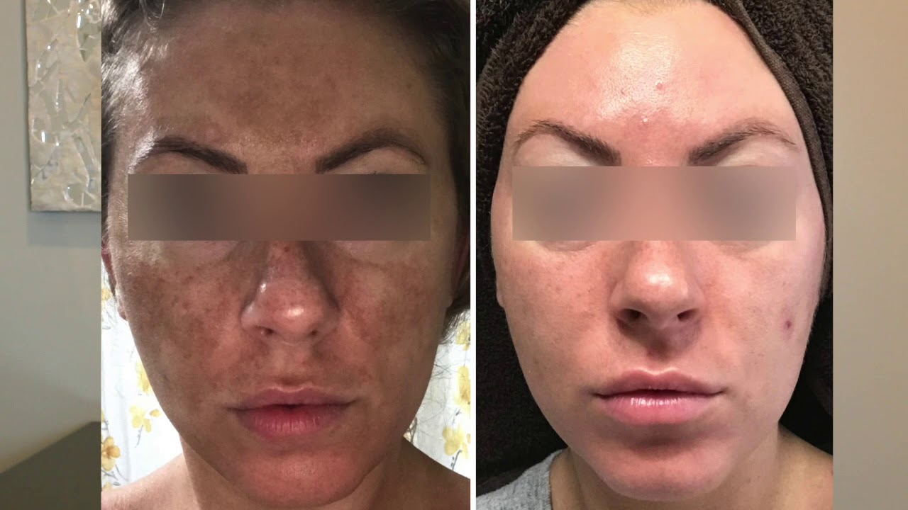 The Future of Microneedling Is Here With Secret RF