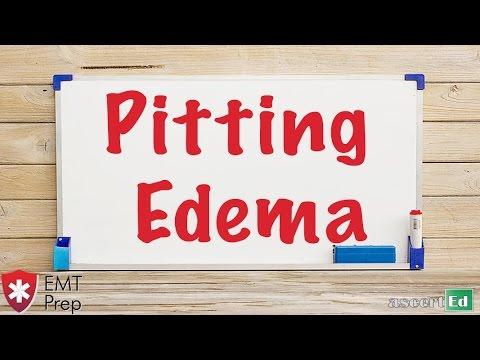 Pitting Edema - EMTprep com