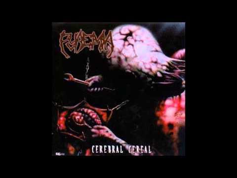 Pyaemia-Cranial Blowout