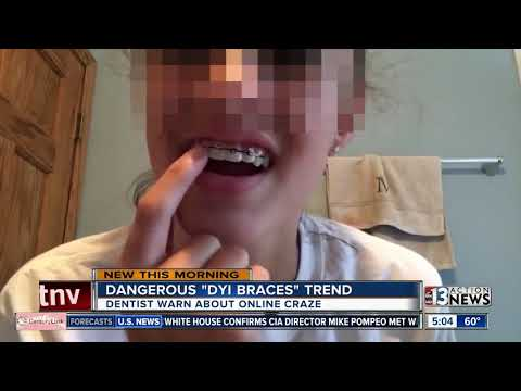 Dentists warn of using hairties and fishing wire to create own braces