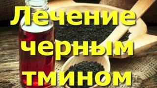 Лечение маслом черного тмина. Универсальное средство в вашей аптечке.
