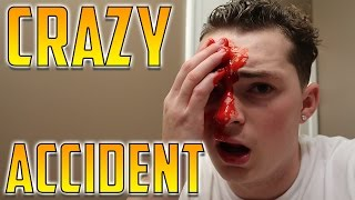I GOT STABBED IN THE FACE! (NOT CLICKBAIT)