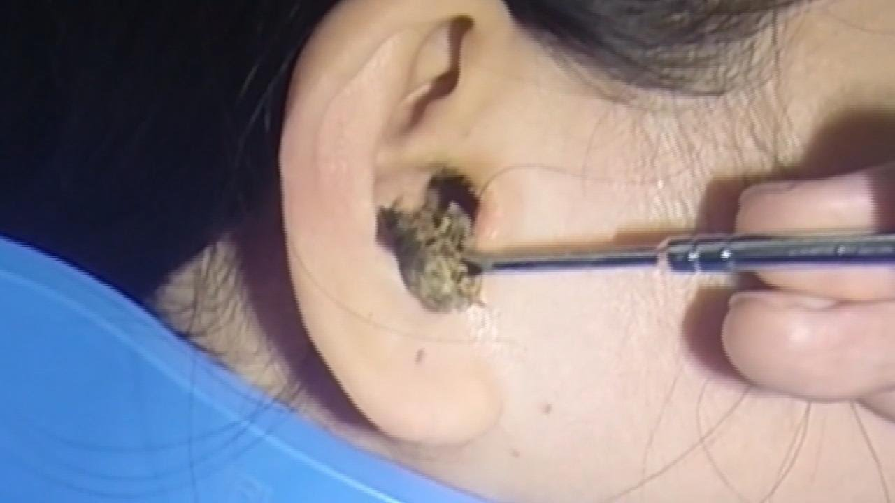 So Much Earwax - Youtube-8671