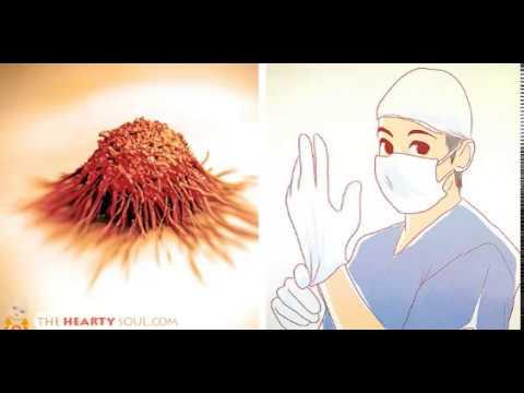 фото раком женщины