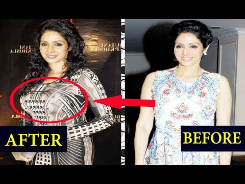 Top 10 Bollywood Actress Who Got Silicon Implants   Before And After