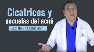 Cicatrices y secuelas del acné