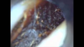 Ear Wax Removal Unbelievable collapsed ear canal