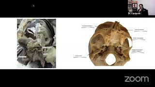 Live Webinar on Atrophic Jaws Rehabilitation