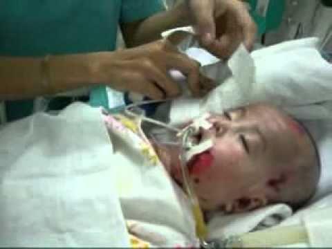 Video- Rơi lệ nhìn Nhân Ái trên giường bệnh.flv