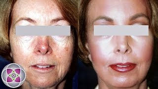 SpectraLift Non Surgical Laser Facelift Before and After