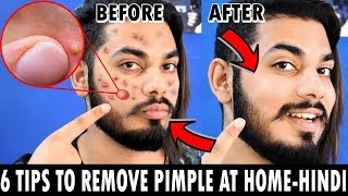 HOW TO GET RID OF PIMPLE IN 6 EASY WAYS | PIMPLE/ACNE TREATMENT | Asad Ansari