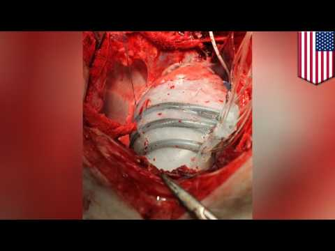Robot heart: Soft robotic sleeve helps simulate heart beating to push blood through - TomoNews