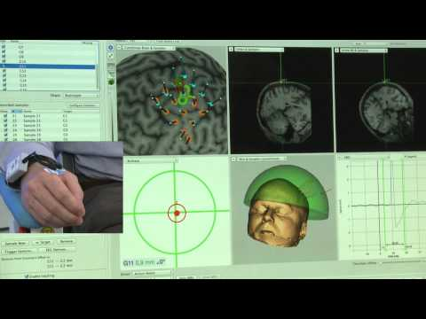 Robotic TMS Motor Mapping Over Predefined Grid