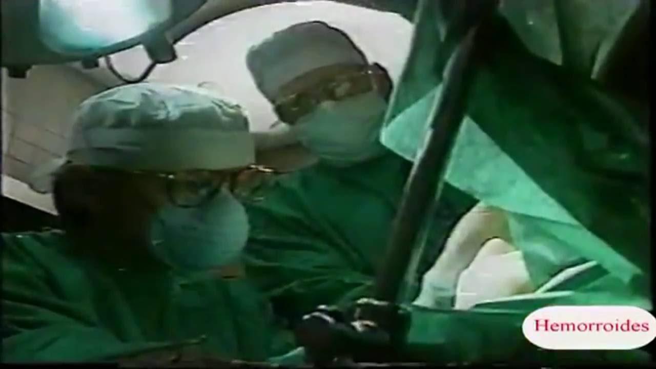 Cirugía de Hemorroides por láser co2 - YouTube