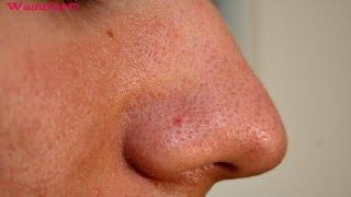 علاج حبوب الوجه والرؤوس السوداء ، وصفات طبيعية مضمونة للبشرة والوجه