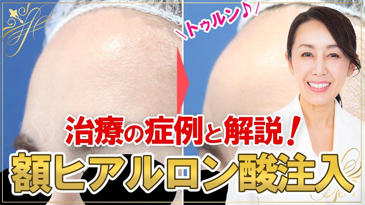 【額ヒアルロン酸注入】実体験治療の症例と解説! トゥルン♪と丸いおでこへ