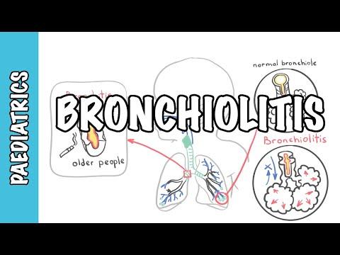 Bronchiolitis (causes, Pathophysiology, Signs And Symptoms, Treatment)