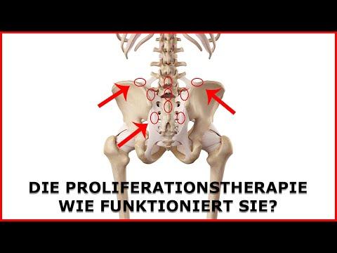 Die Proliferationstherapie als Schmerztherapie bei Rückenschmerzen, Tennisellenbogen und co.?