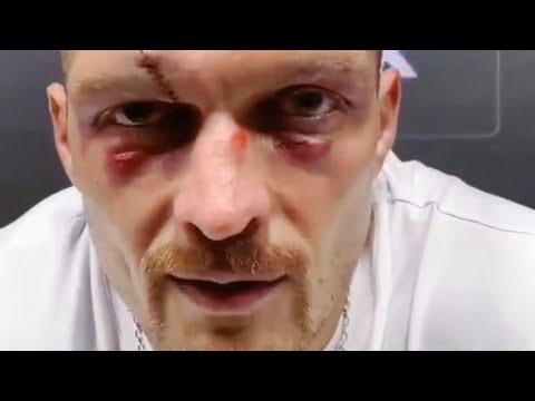 Усик на эмоциях сорвался после боя с Джошуа. Это нужно видеть