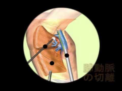 肺葉切除術の流れ - YouTube