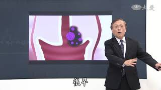 【大愛醫生館】20180502 - 讀懂肺腺癌