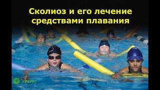 Сколиоз и его лечение средствами плавания