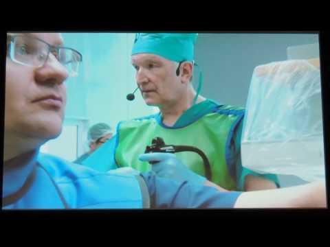 08Live Киста головки поджелудочной железы T Rosch EUS дренирование кисты
