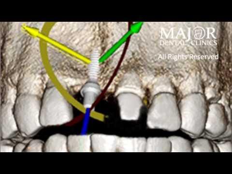 same-day-dental-implant-scenario-at-major-dental-clinics