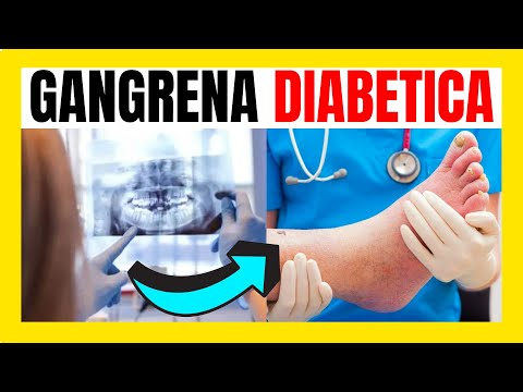 gangrena-diabetica-|-cos'è-e-come-prevenire-👈✅