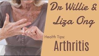 Download Video Monggo at Arthritis, Huwag Ipatunog ang Kamay, Lupus - ni Doc Ging Zamora-Racaza #7 MP3 3GP MP4