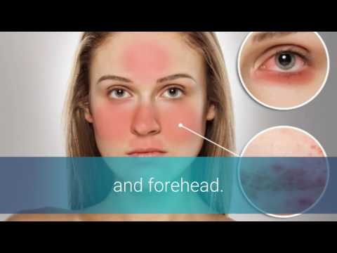 rosacea-and-essential-oils