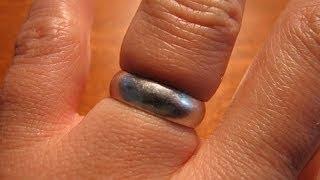 طريقة سهلة لاخراج الخاتم العالق في الاصبع !