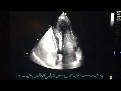Bubble contrast echocardiography in detecting pulmonary ...