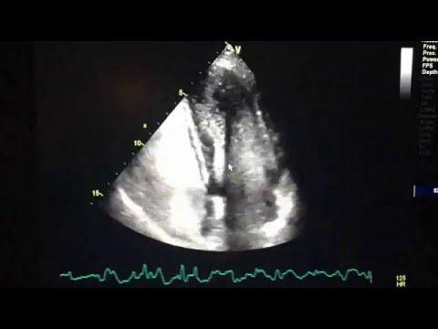 2d Echo: Bubble study positive for Transpulmonary Shunt ...
