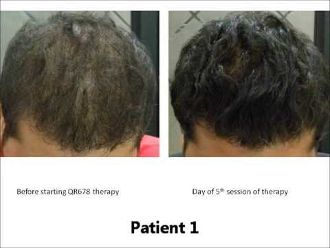 Qr 678 Injection For Hair Growth Best Hair Loss Solution By Dr