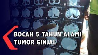 Histopathology Kidney--Wilms tumor.