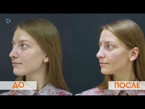 видео: Лазерный карбоновый пилинг. Очищение и омоложение кожи. Лечение акне.