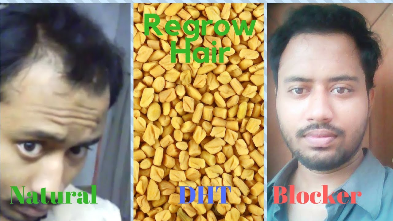 Hair Loss Natural Treatment In Hindi