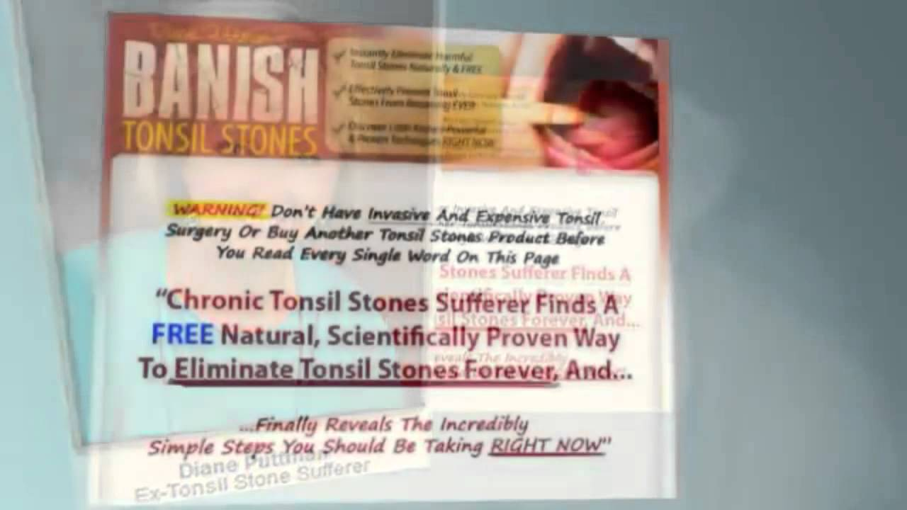 Fast Tonsil Stones Cure Free - Fast Tonsil Stones Cure