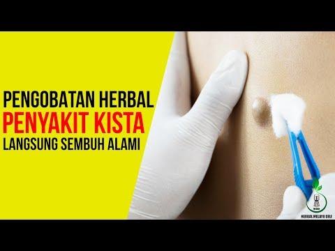 cara-menyembuhkan-kista-secara-alami---obat-herbal-kista-||-pengobatan-kista-qnc-jelly-gamat
