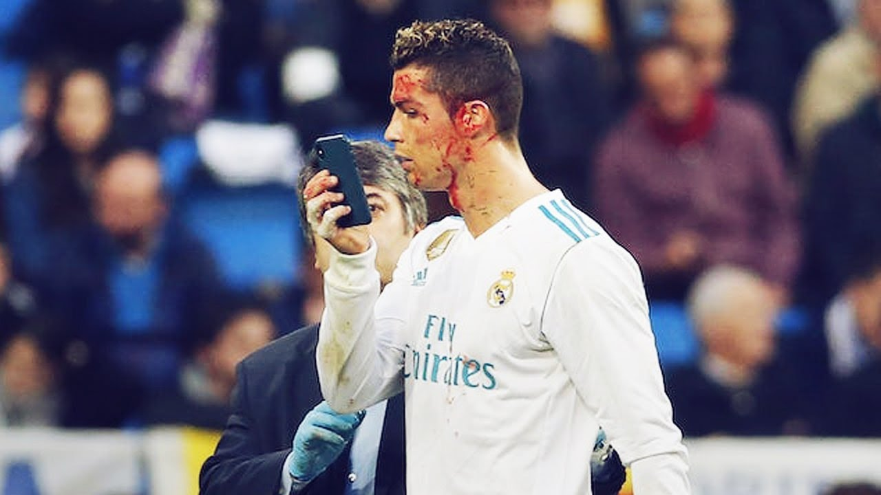 Les 4 pires blessures de la carrière de Cristiano Ronaldo | Oh My Goal