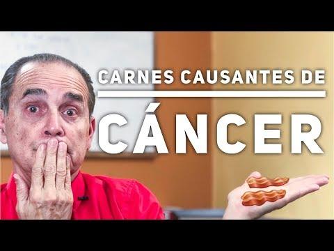 Episodio #1454 Carnes causantes de cáncer