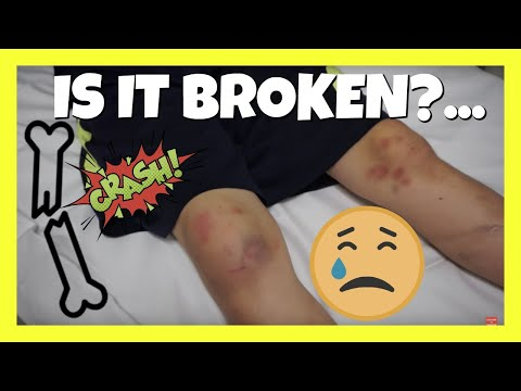 🏥  BUSTED UP KNEE AT THE SKATEPARK | AIDAN'S SKATEPARK ACCIDENT
