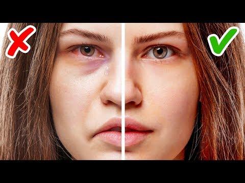 11 Признаков Проблем со Здоровьем, Написанных на Вашем Лице