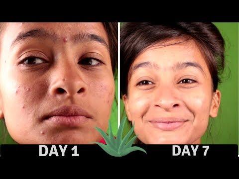 hqdefault - Aloe Vera Cures Acne