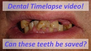 Magic Dentistry - Time lapse video