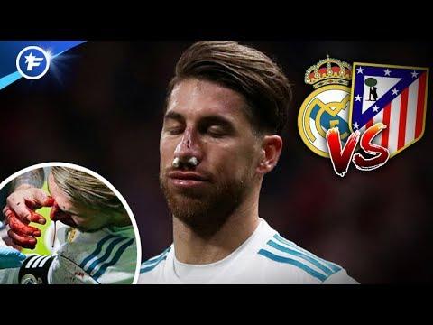 Le nez explosé de Sergio Ramos laissera des traces | Revue de presse