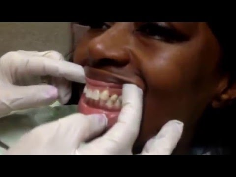 An affordable cosmetic solution to replacing missing teeth...no more partial!..